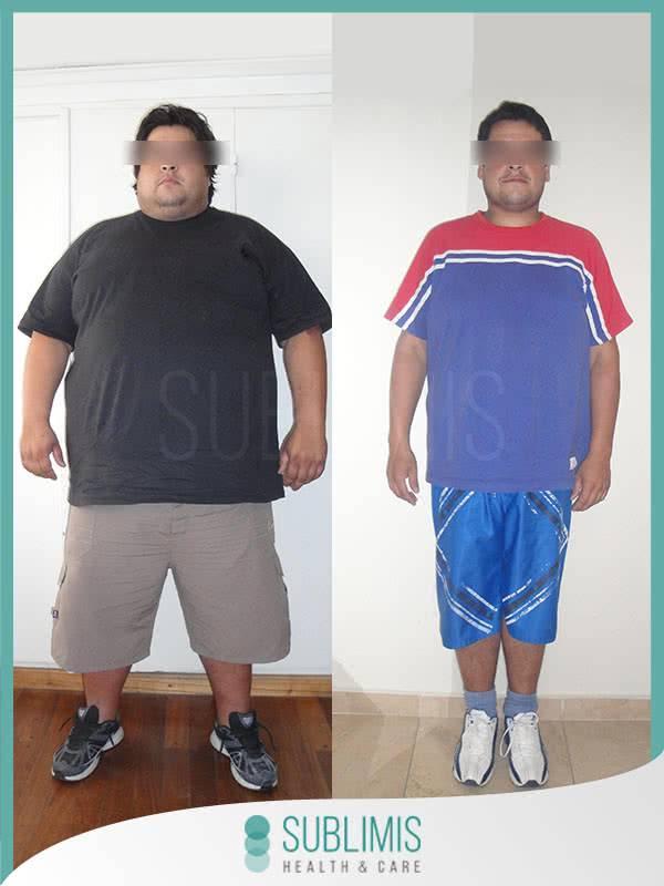 Antes y despues Cirugia Bariatrica