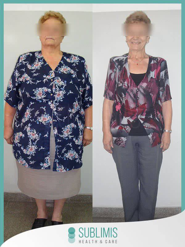 Before and after a Gastric Bypass Surgery Abroad