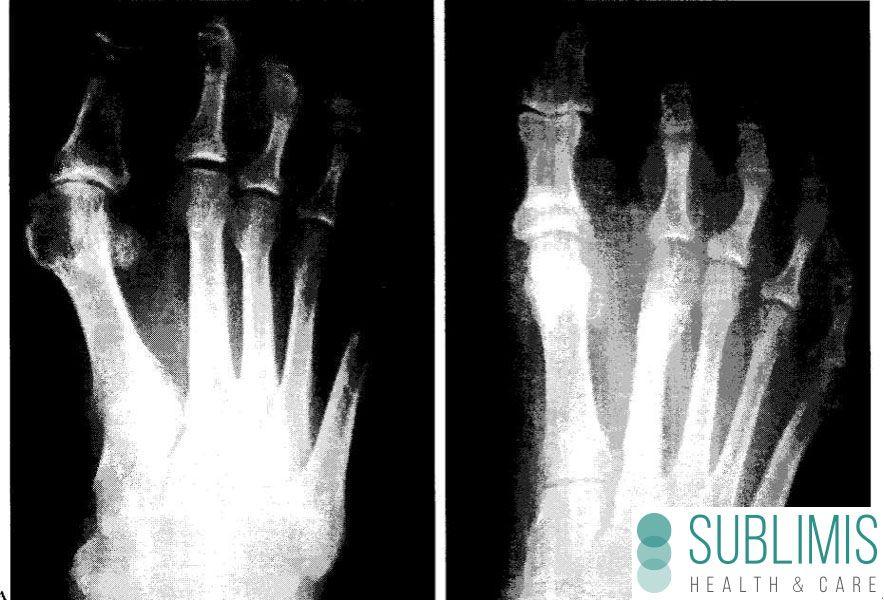Foto de antes y despues de una cirugia de juanetes