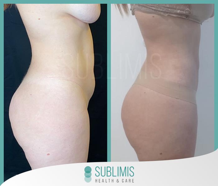 Antes y después de una liposucción