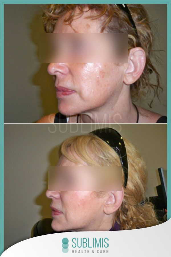 Platelet Rich Plasma, before and after