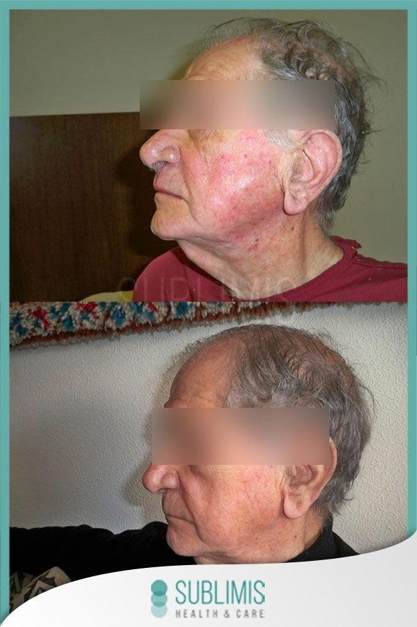 Rosacea, before and after