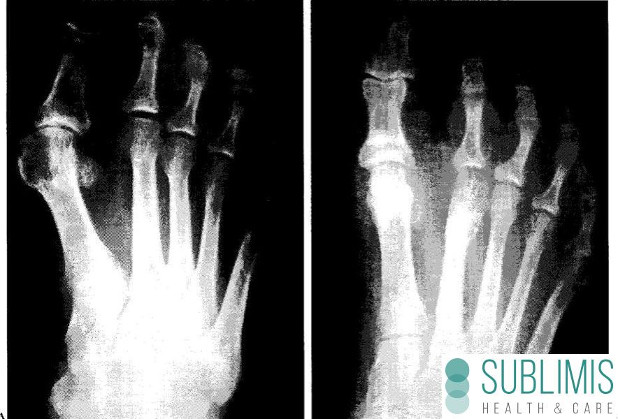 Bunion Surgery, before and after