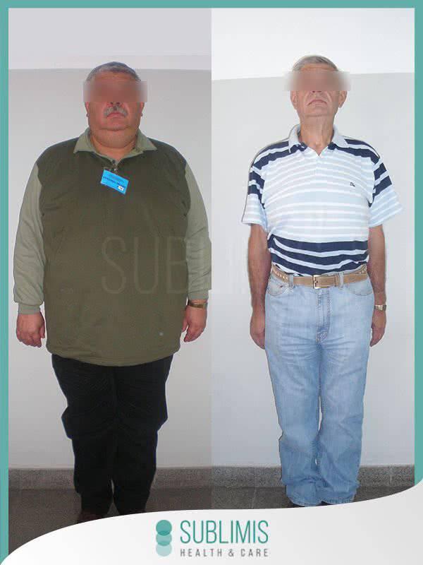 Tratamiento de la Diabetes - Cirugía Metabólica - Córdoba