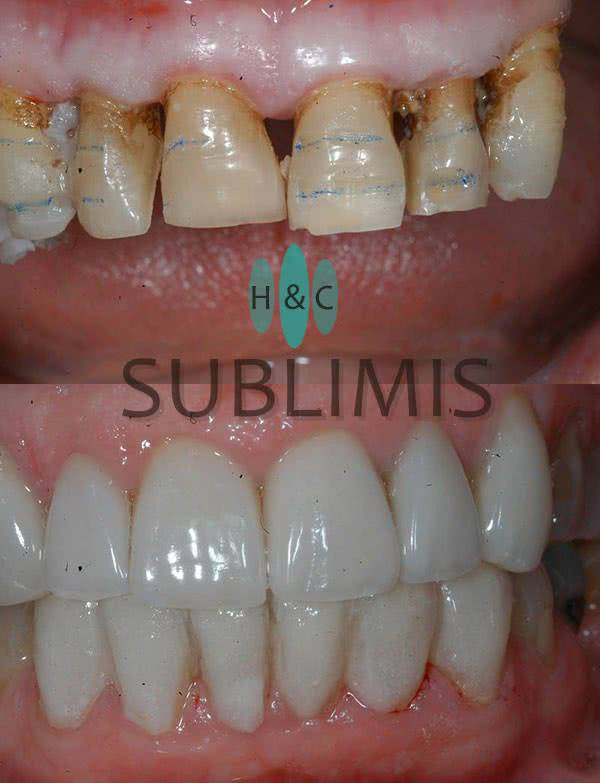 Porcelain Veneers, before & after