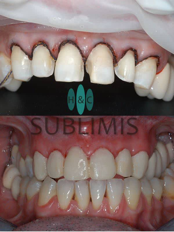 Porcelain Veneers, before and after