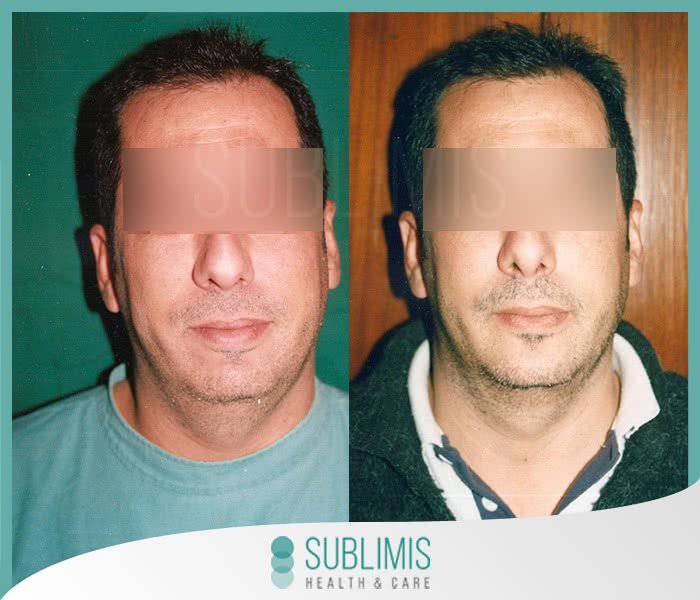 Cheek implants, before and after