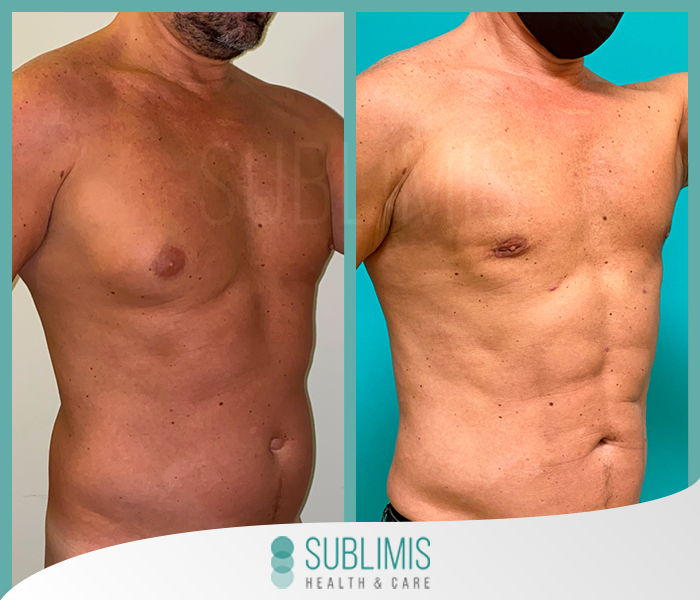 Male breast reduction surgery, before and after.