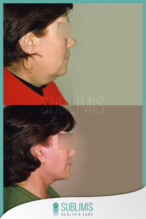Facelift, before and after