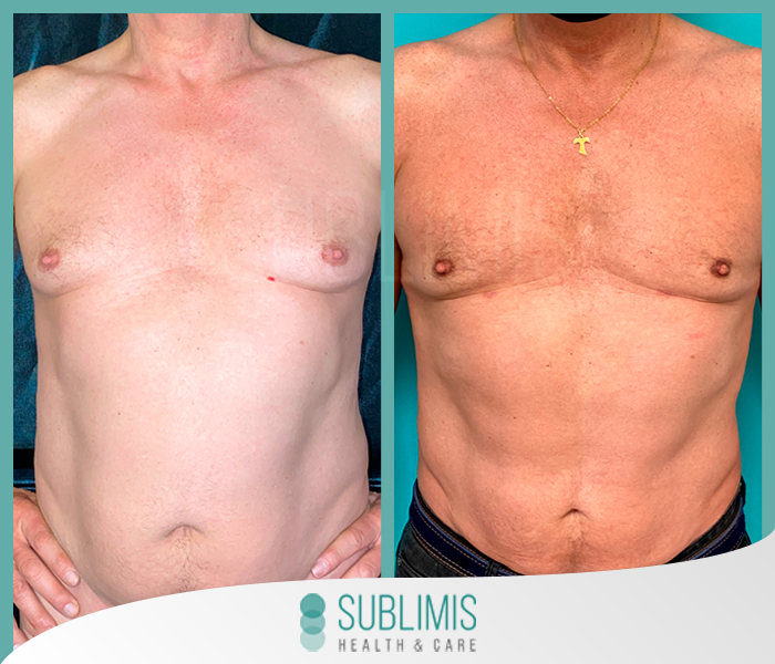 Liposuction, before and after photos.