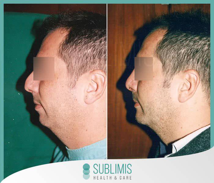 Genioplasty, before and after.