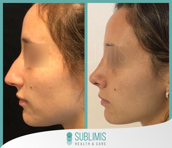 Antes y despues de una cirugia de nariz