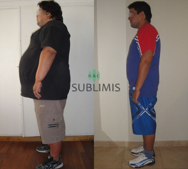 Antes y despues de una cirugia bariatrica