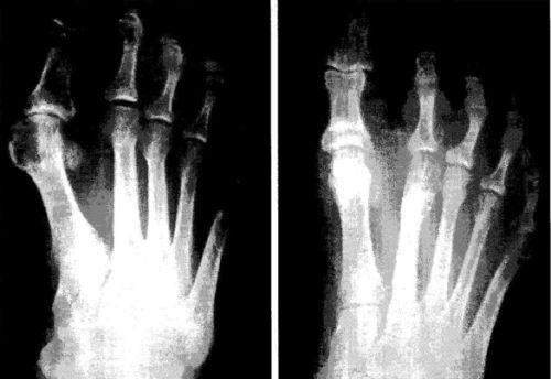 Radiografia antes y despues de una cirugia de juanetes
