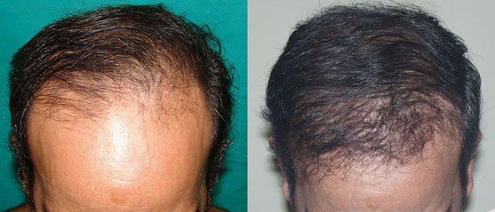 Antes y después de implantes capilares