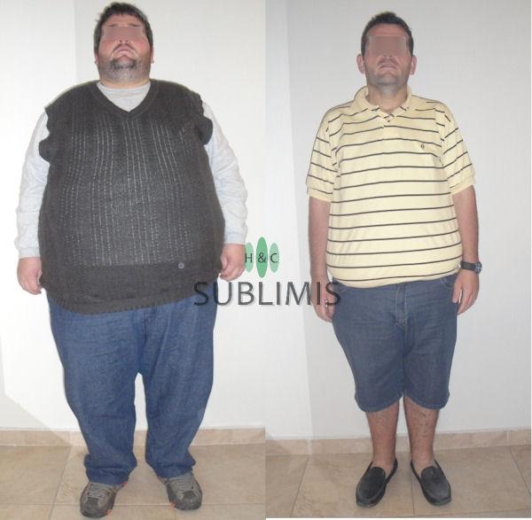 Antes y después de una cirugia bariatrica