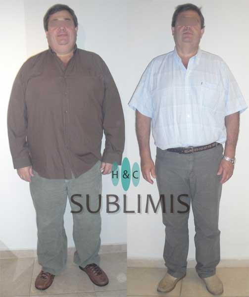 Cirugia de la obesidad, antes y despues.