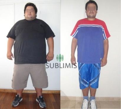 Fotos de antes y despues de una cirugia bariatrica
