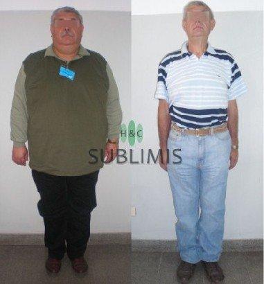 Antes y despues de una cirugia metabolica