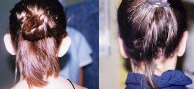 Antes y después de una cirugía de orejas