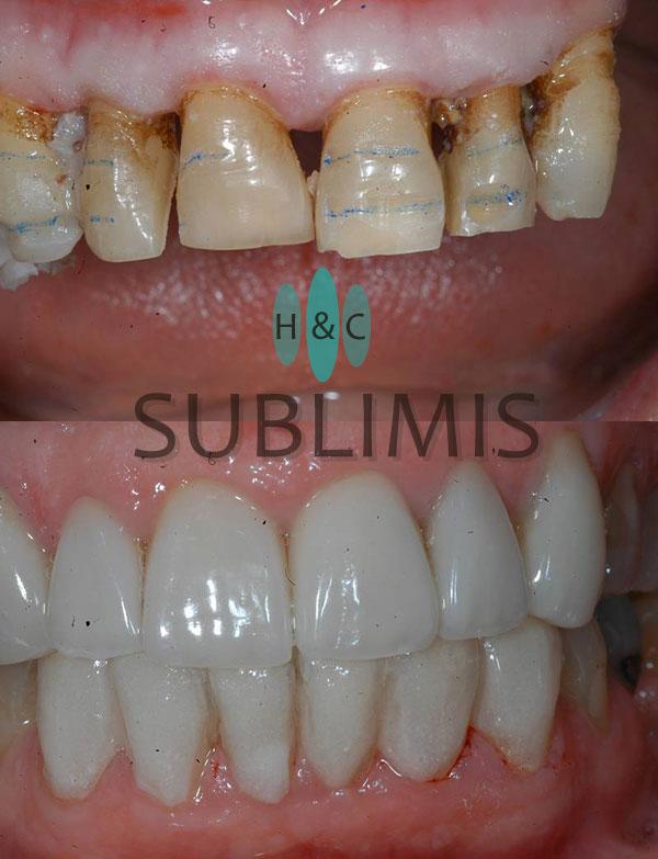 Antes y después de carillas dentales de porcelana