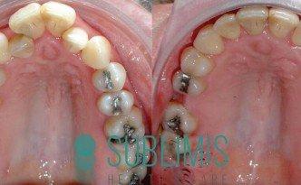 Antes y despues de ortodoncia convencional