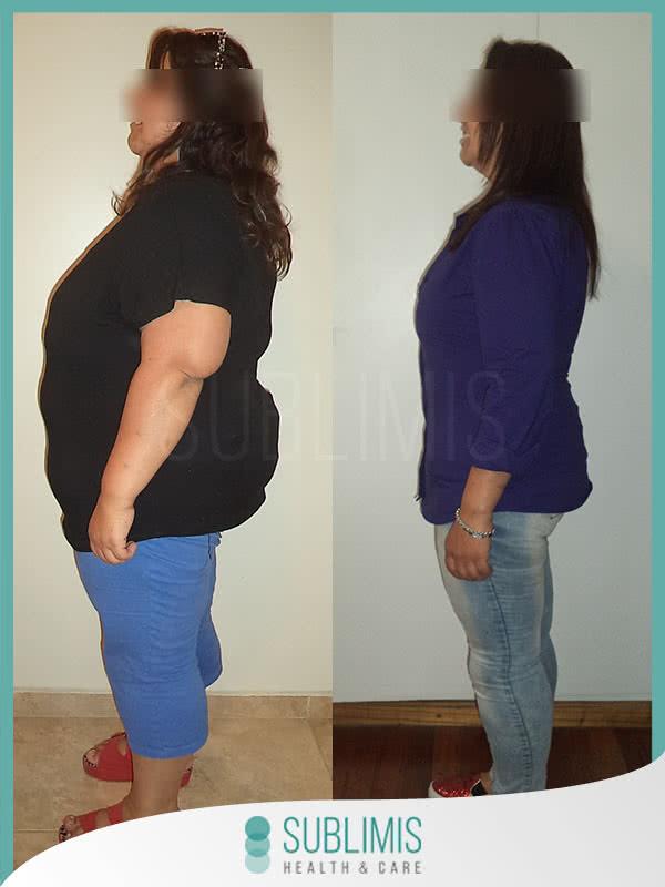 Fotos de una mujer antes y después de una operación para perder peso