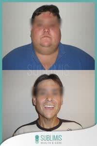 Antes y Después de una Cirugía de Banda Gástrica