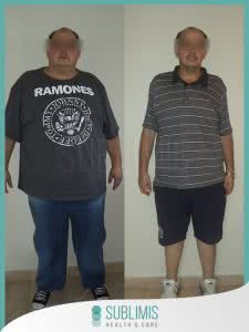 Hombre Antes y Despues de una Cirugia Bariatrica