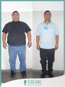 Antes y Después de la Cirugía de Bypass Gastrico
