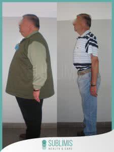Antes y Después de una Cirugía para Diabetes