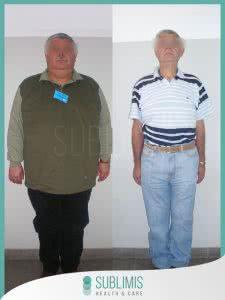 Antes y Después de una Cirugía Metabólica