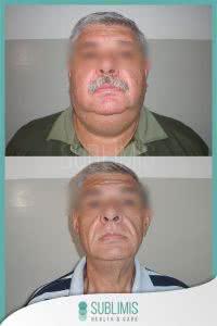 Antes y Después de la Cirugía para Diabetes