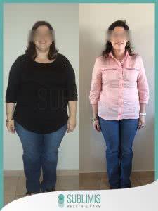Antes y Despues de una Operacion de Balon Gastrico