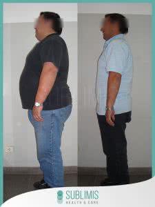 Antes y Despues de una Operacion de Bypass Gastrico