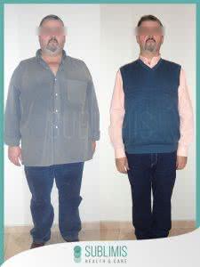 Bypass Gastrico en Hombres Antes y Despues