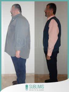 Bypass Gastrico en Hombres Fotos
