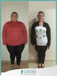 Bypass Gastrico Mujer Antes y Despues