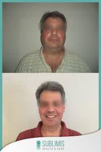Cirugía Banda Gástrica