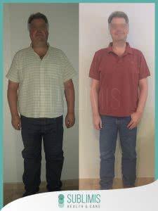 Cirugía de Banda Gástrica Antes y Después