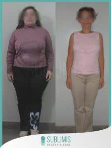 Cirugia Bariatrica Antes y Despues