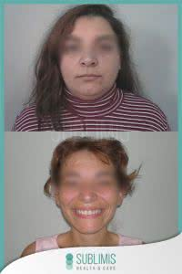 Cirugia Bariatrica Fotos