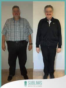 Cirugía Bariátrica Fotos Antes y Después