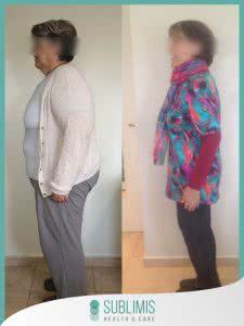 Cirugia Bariatrica en Mujeres Fotos