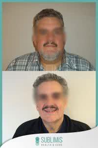 Cirugía Bariátrica en Hombres