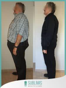 Cirugía Bariátrica en Hombres Antes y Después