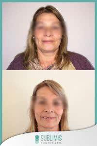 Cirugia Bariatrica Imagenes