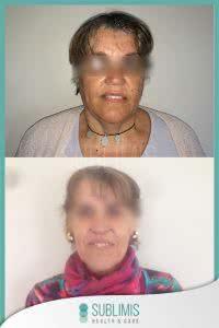 Cirugia Bariatrica en Mujer Adulta