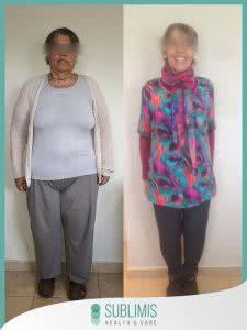 Cirugia Bariatrica en Mujer Antes y Despues