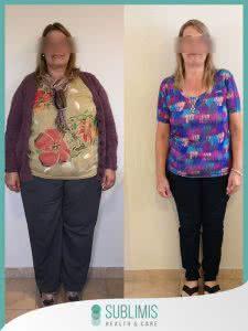 Cirugia Bariatrica en Mujeres